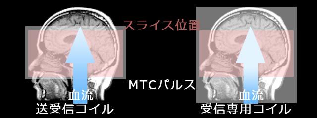 MTCパルスのかけ方