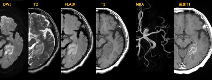 静脈性脳梗塞