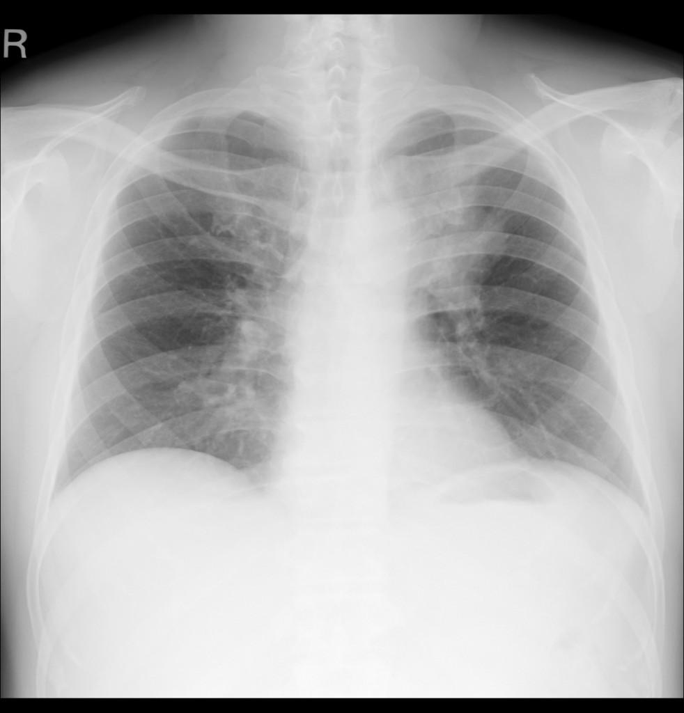 シルエットサインと肺区域