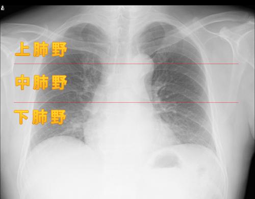 胸部レントゲンにおける肺区域