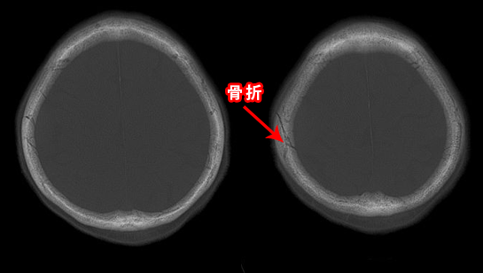 硬膜外血腫のCT 骨条件