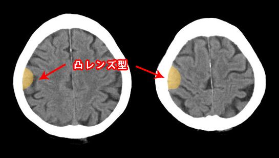 硬膜外血腫のCT 凸レンズ型