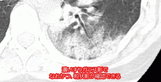 マイコプラズマの重症化