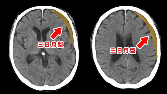 慢性硬膜下血腫 三日月型