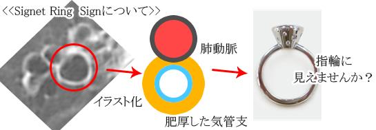 Signet Ring Signのメカニズム