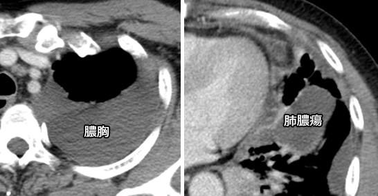 肺膿瘍と膿胸のCT画像