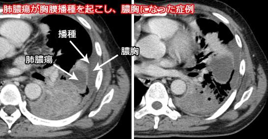 膿胸と肺膿瘍の違いは?鑑別に「split pleura sign」が便利 - 読影を ...