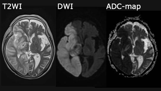 脳梗塞 MRI