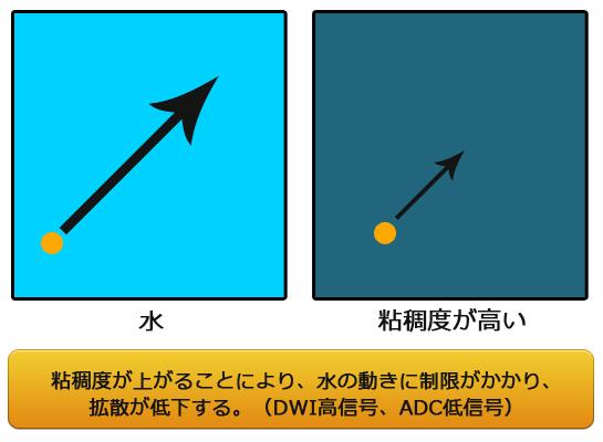 拡散強調画像(DWI)と粘稠度