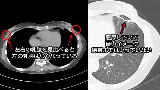 放射線肺炎の胸部CT
