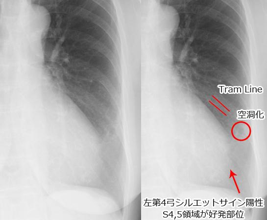 NTM(非結核性抗酸菌症)胸部レントゲン