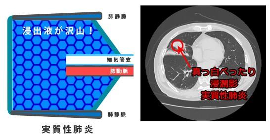 実質性肺炎のイラストとCT画像
