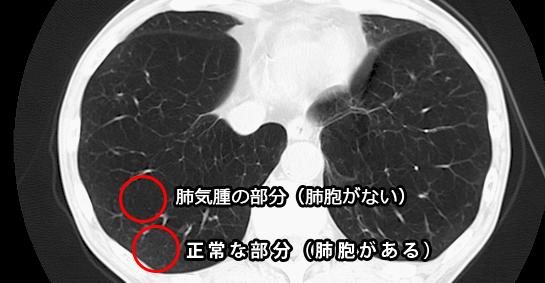 肺気腫 CT画像