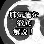 肺気腫を徹底解説!