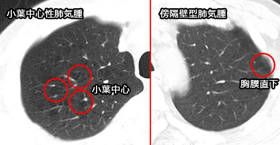 小葉中心性肺気腫 傍隔壁型肺気腫