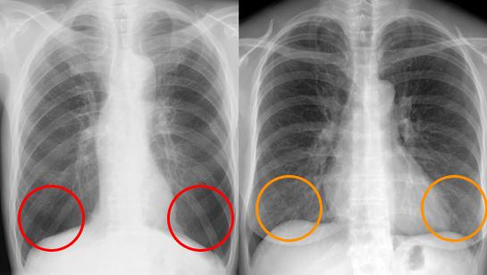 肺気腫 正常例と比較