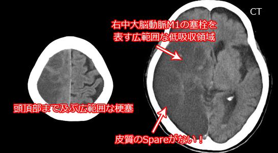 心原性塞栓症のCT