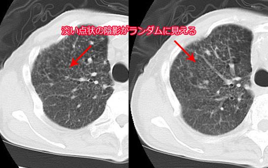 粟粒結核の肺CT