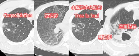 肺結核のCT