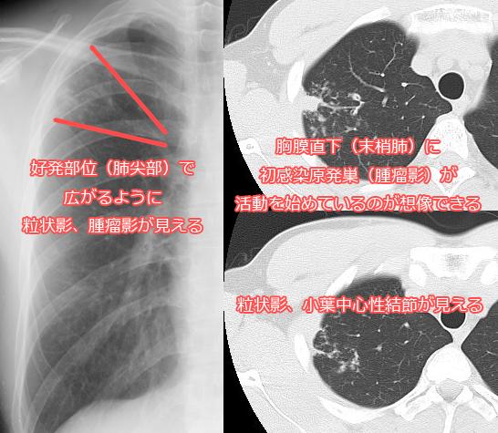 二次結核症のレントゲン、CT画像