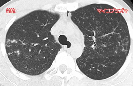 肺結核とマイコプラズマ