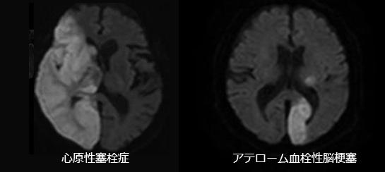 心原性塞栓症とアテローム血栓性脳梗塞の違い(MRI画像)