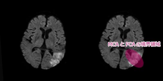 中大脳動脈(MCA)と後大脳動脈(PCA)の境界領域。分水嶺脳梗塞