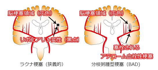 分枝粥腫型梗塞(BAD)のイラスト