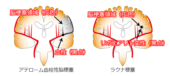 ラクナ梗塞のメカニズム(リポヒアリン変性)