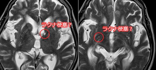 ラクナ梗塞 MRI画像