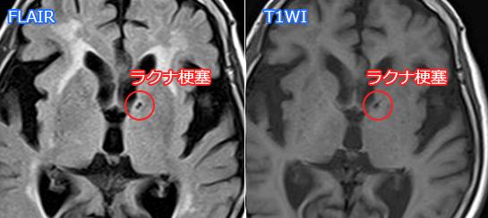ラクナ梗塞(T1WI、FLAIR)