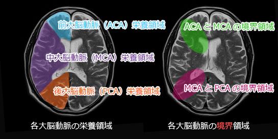 皮質(表在)型分水嶺脳梗塞の範囲