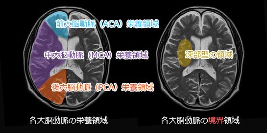 深部(内側)型分水嶺脳梗塞の範囲