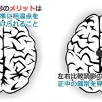 頭部読影の際の左右比較読影のメリットとデメリット
