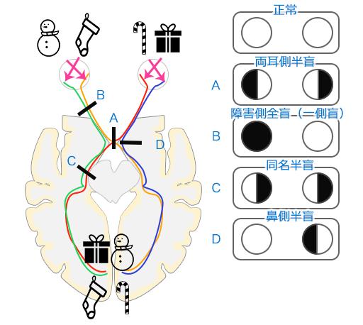 両耳側半盲の機序