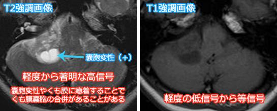 聴神経腫瘍のMRI