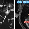 聴神経腫瘍の造影MRI