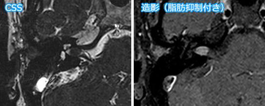 内耳道に限局した聴神経腫瘍
