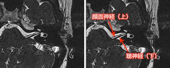 聴神経(第8)MRI