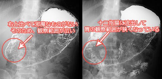 胃バリウム検査