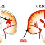 脳出血とくも膜下出血の違い