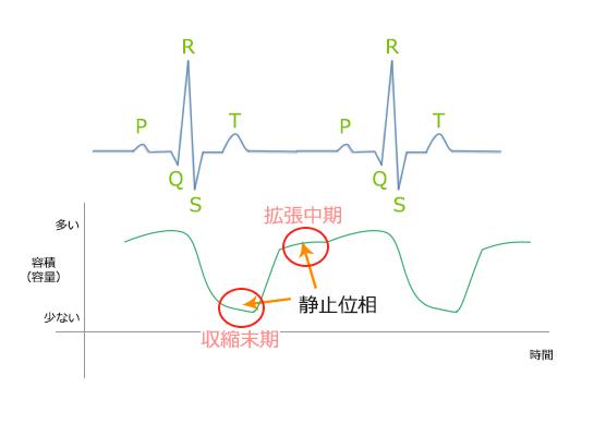 冠動脈(心臓)CTのための心電図