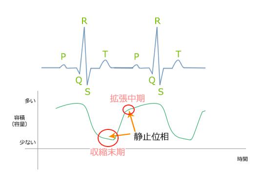 頻脈の場合。冠動脈(心臓)CTのための心電図