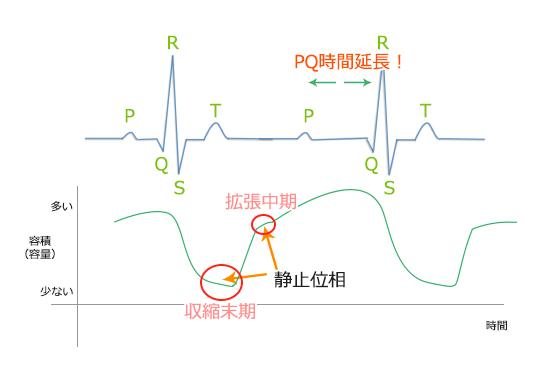 PQ時間延長の場合。冠動脈(心臓)CTのための心電図