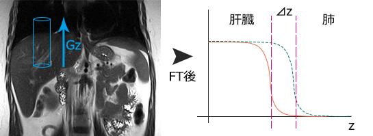 冠動脈(心臓)MRIのナビゲーター