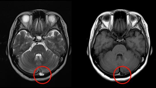 くも膜顆粒のMRI画像