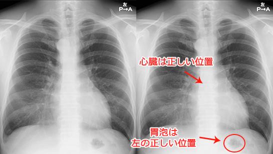右大動脈弓の胸部X線(レントゲン)