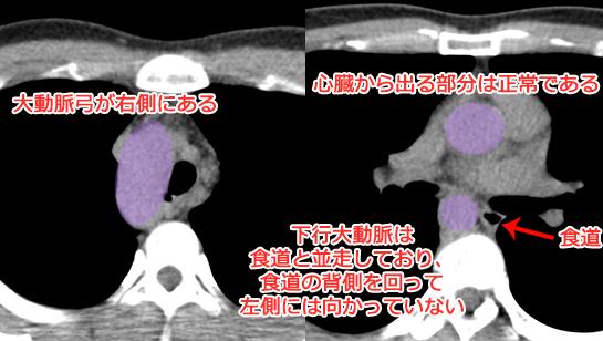 右動脈弓の胸部CT画像