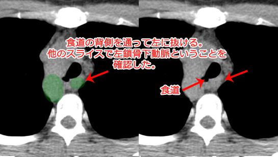 右動脈弓の胸部CT画像(異所性左鎖骨下動脈タイプ)
