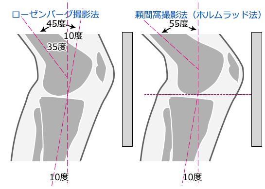 ローゼンバーグ撮影法と顆間窩撮影法(ホルムラッド法)